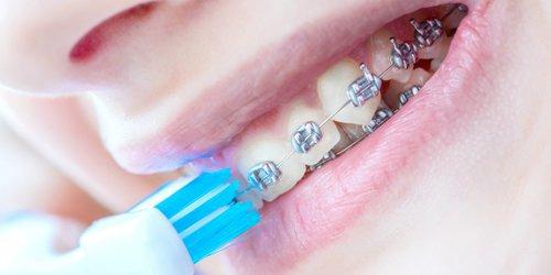 a woman using braces brushing her teeth
