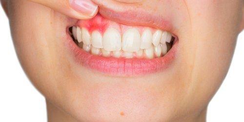 the image of bad gum trauma